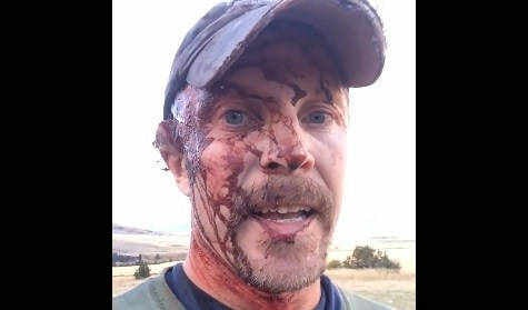 Blood-streaked survivor recounts bear attack on Facebook